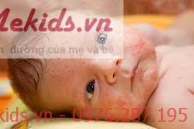 Cách điều trị rôm sảy ở trẻ nhỏ
